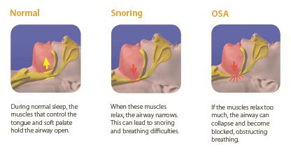 About Sleep Apnea Quality Sleep Philippines